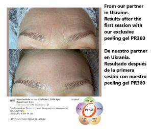 26 pr360 peeling gel mesoinstitute kojic malic dmae phytic tca wrinkles free beauty renovation flawless skin mature oily acne scars